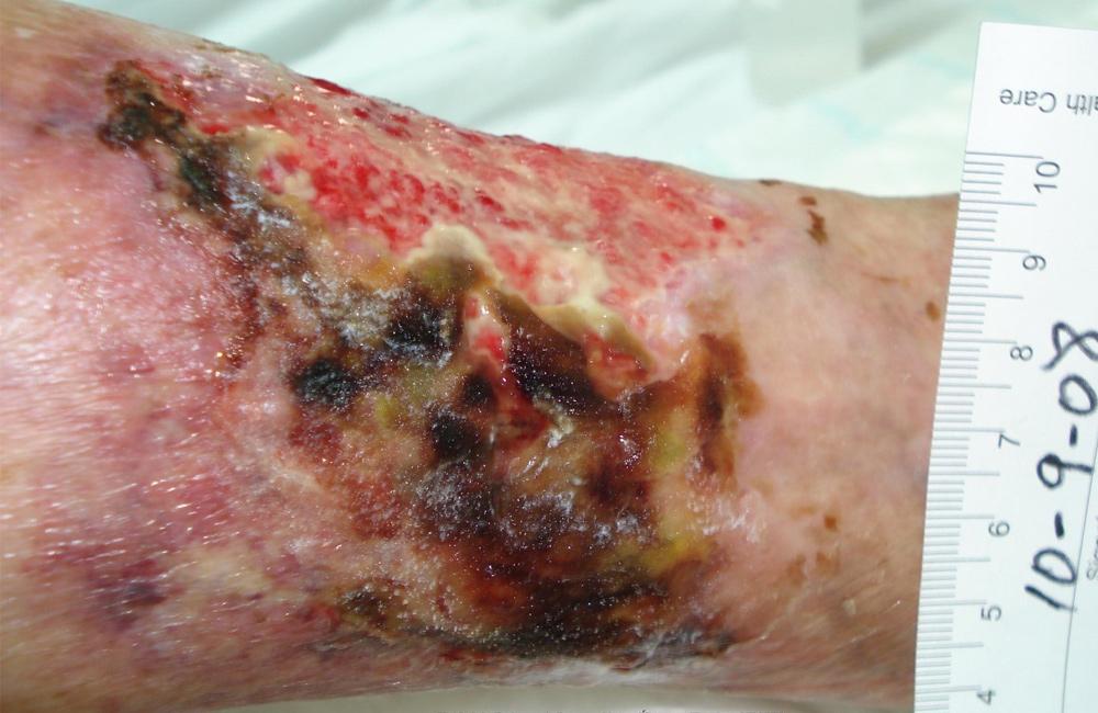 hypertensive_ulcer_1000px650